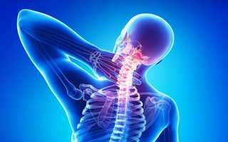 Имбирь против шейного остеохондроза: польза корня при лечении народными средствами, рецепты